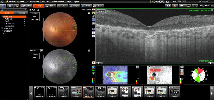 Photo of patient eye data